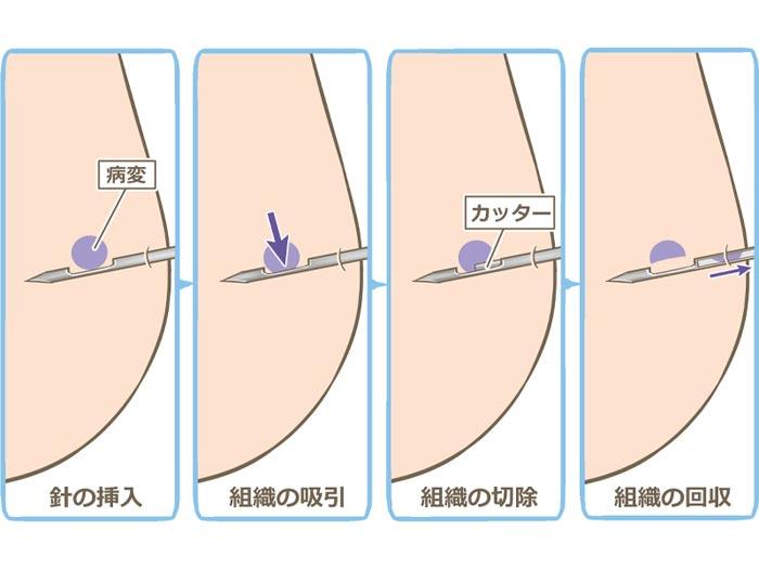 乳がん検診の針生検は痛い!超音波エコーやマンモグラフィとの違いと費用