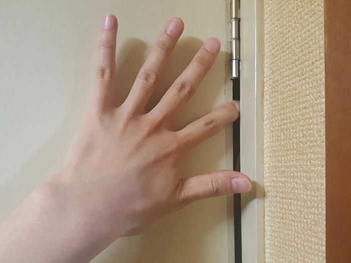 指を扉に挟んで内出血